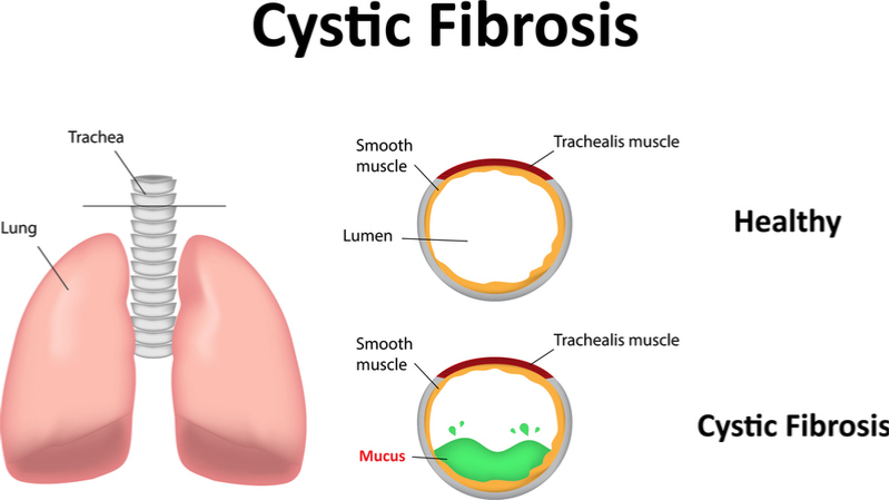 New Gene Therapy Could Treat Cystic Fibrosis With One Dose