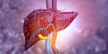 liver disease genkyotex fibrosis cirrhosis