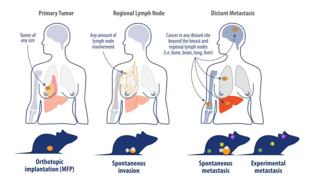 breast cancer, orthotopic tumor model, breast cancer development