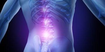 grunenthal mesoblast chronic low back pain